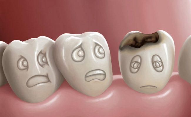 تفسير حلم الأسنان السوداء