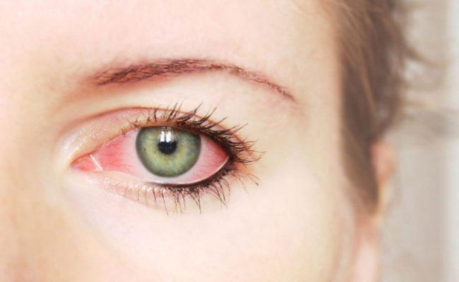 كيف يذهب احمرار العين